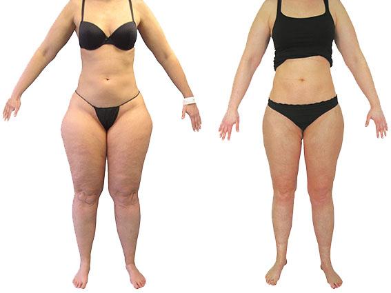 lipoedeem liposuctie voor en na