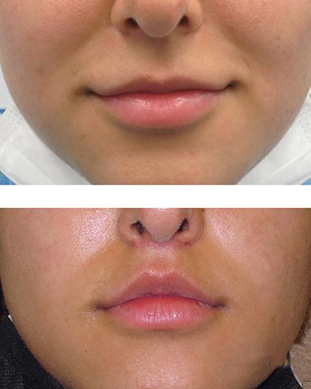 lipvergroting voor en na foto