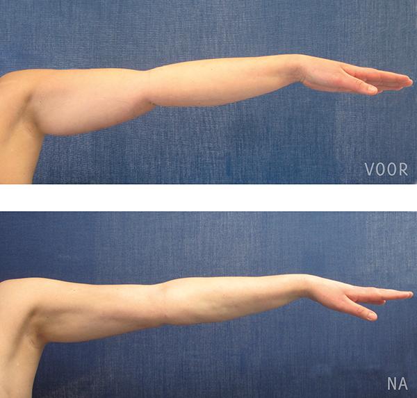 liposuctie armen voor-en-na-foto