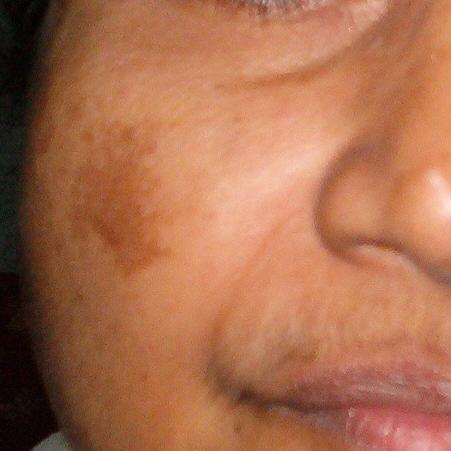 Melasma in gezicht