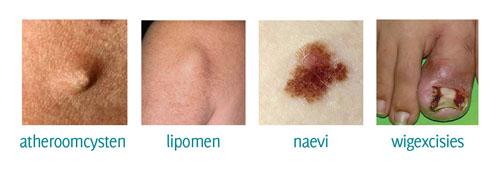 atheroomcysten lipomen naevi wigexcisies kleine chirurgie