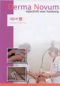 publicatie over spataderen door Shaula Stevens in Derma Novum