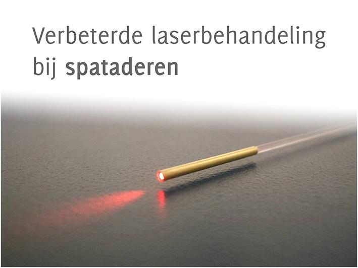 EVLT verbeterde laserbehandeling spataderen