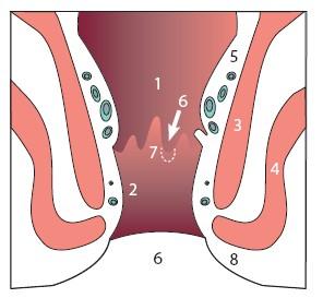 anus aambeien normale anale kanaal