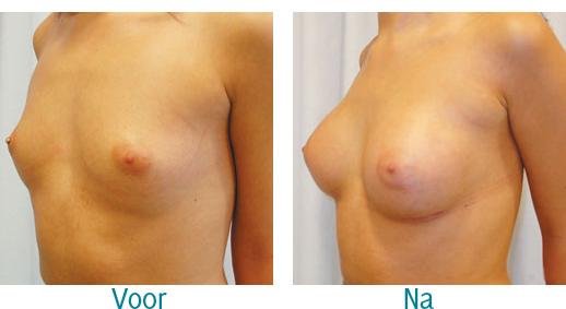 foto voor en na borstvergroting bij zelfstandige kliniek de Blaak