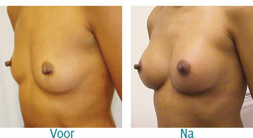 foto borstvergroting cosmetisch chirurgie