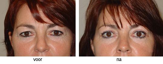 boven ooglidcorrectie voor en na foto