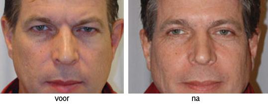 voor en na foto ooglidcorrectie