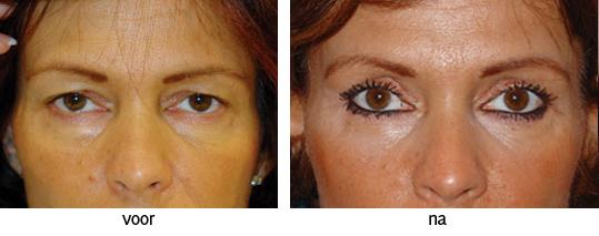 ooglidcorrectie fotos resultaat
