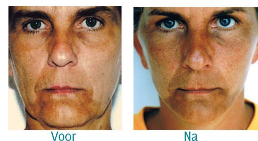 voor en na foto faselift bij cosmetische chirurgie