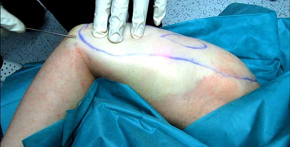 laserliposuctie