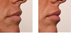 lip fillers foto voor en na de behandeling