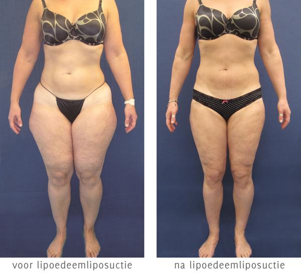 lipoedeem liposuctie voor en na foto