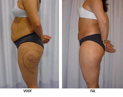 liposuctie voor na foto liposculptuur