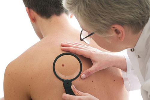 huidkanker verdacht vlekje