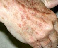 ouderdomsvlekken handen behandelen