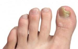 Schimmelnagels voet tenen