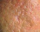 littekentherapie behandelen huidtherapeut