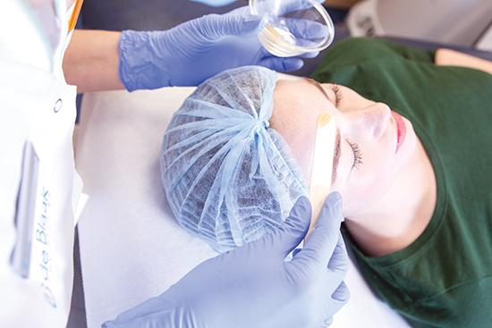 chemische peeling huidtherapie