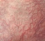 coupersose behandelen bij de huidtherapeute en dermatoloog