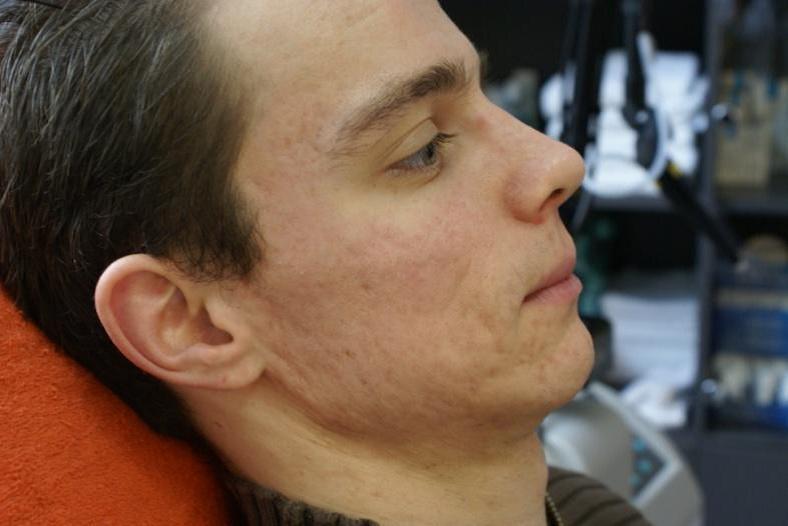 foto acne behandeling na fractional CO2 behandeling
