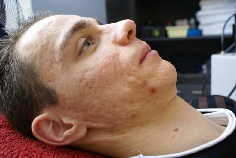foto acne behandeling voor fractional CO2 behandeling