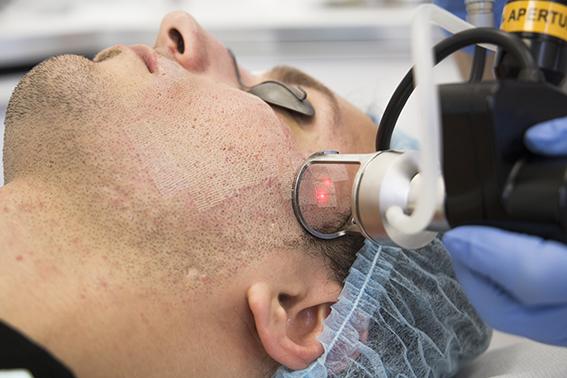 acnelittekens gezicht verwijderen fractional co2 laser