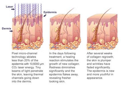 huidtherapie fractional CO2 laser behandeling