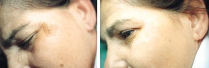 microdermabrassie voor na foto hyperpigmentatie