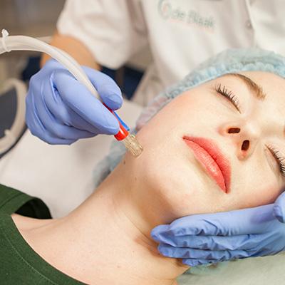 microdermabrasie huidbehandeling