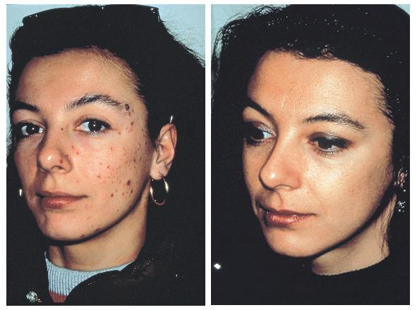voor en na foto acnetherapie microdermabrassie
