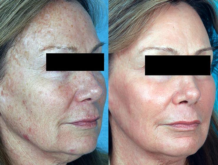 voor en na foto huidbehandeling