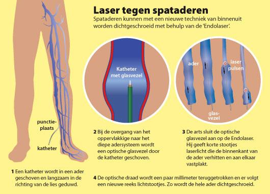 spataderen laseren en behandelen bij de fleboloog van ziekenhuis de Blaak