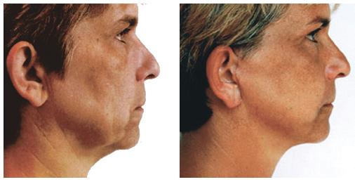 foto voor en na facelift