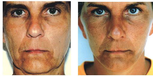 voor-en-na-foto facelift