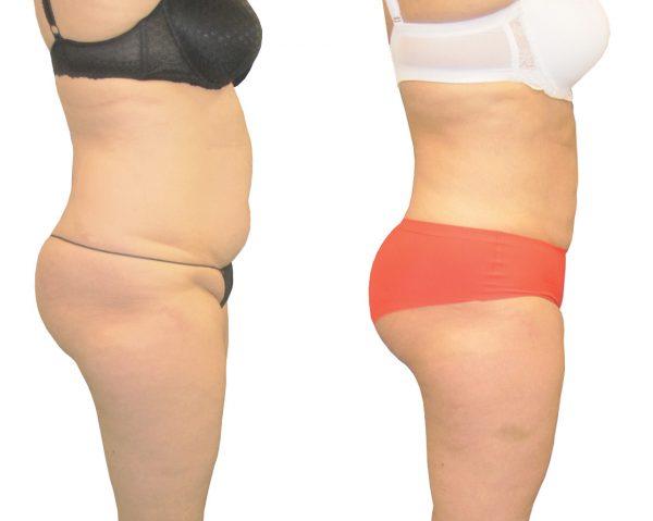 liposculptuur voor en na foto