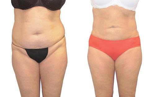 liposculptuur voor en na