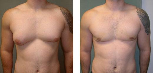 gynaecomastie voor en na foto