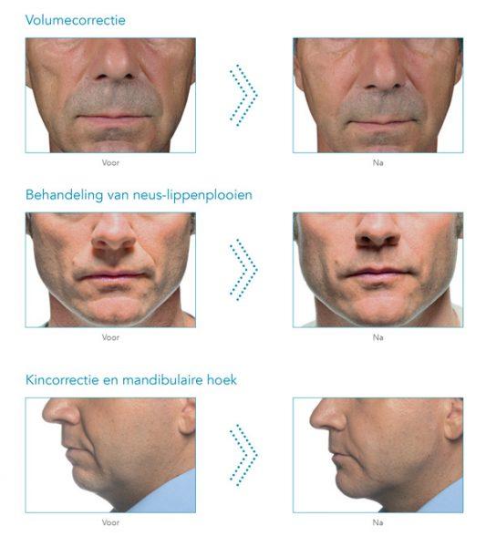 voor- en na foto's injectables mannen