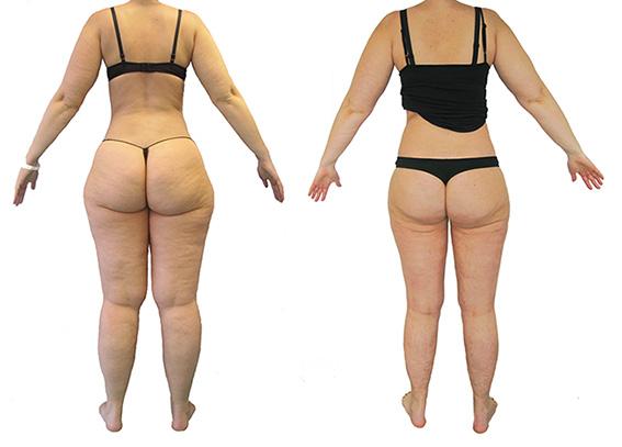 lipoedeem voor en na liposuctiefoto