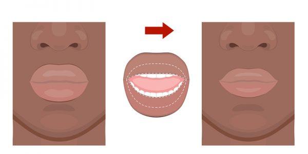 lipverkleining voor na foto