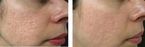 littekens behandelen met laser