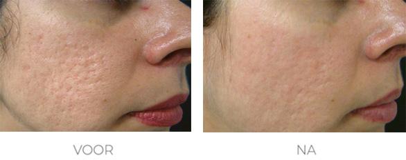 littekens behandelen voor en na foto