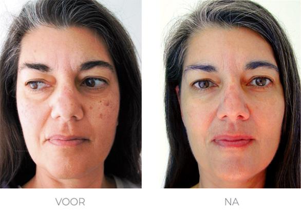 voor en na foto pigmentvlek verwijderen