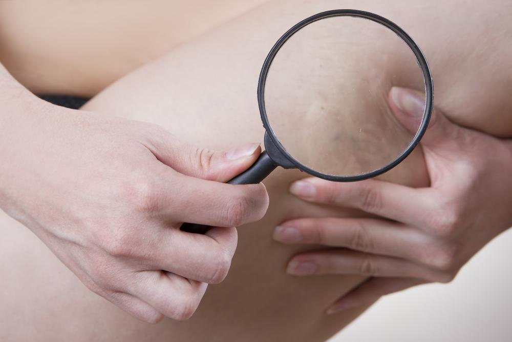 spataderen behandeling