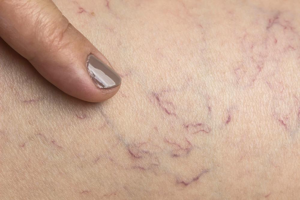 behandeling van spataderen met injecties