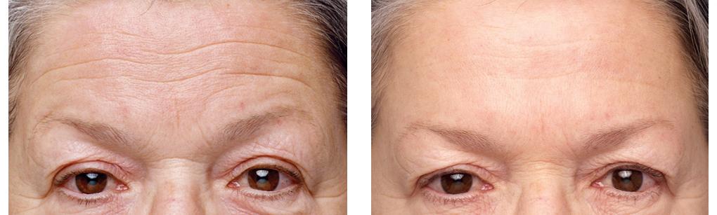 foto voor en na behandeling fronsrimpels botox