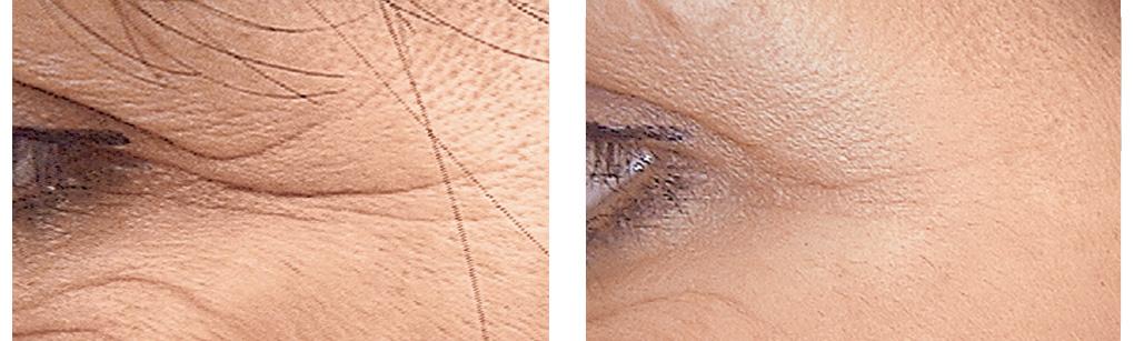 voor en na foto behandeling kraaienpootjes