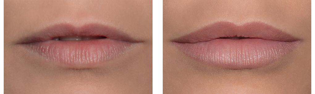 voor en na foto lipfillers