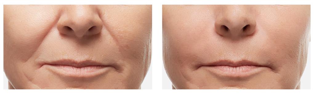 voor en na foto filler neus lippenplooi